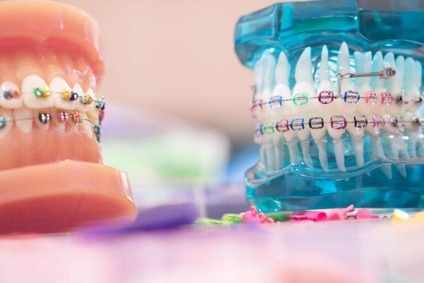 درمان ارتودنسی چگونه به نظم دندان ها کمک می کند؟