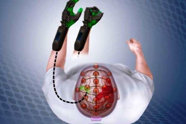 روزانه 400 نفر در کشور دچار سکته مغزی می شوند