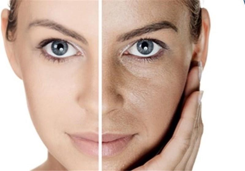 آلودگی هوا با پوست چه می نماید؟