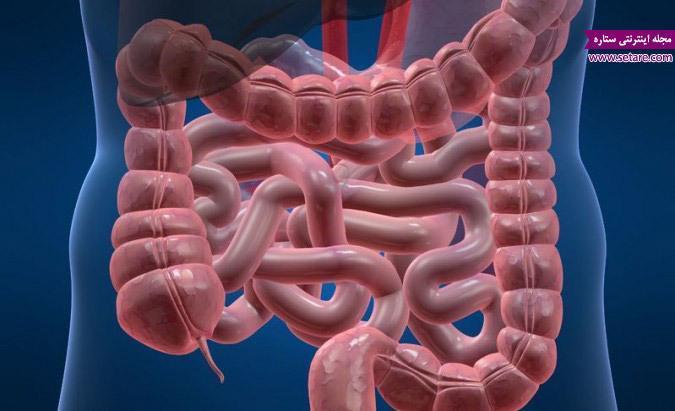 درمان نفخ شکم به روش سنتی و دارویی
