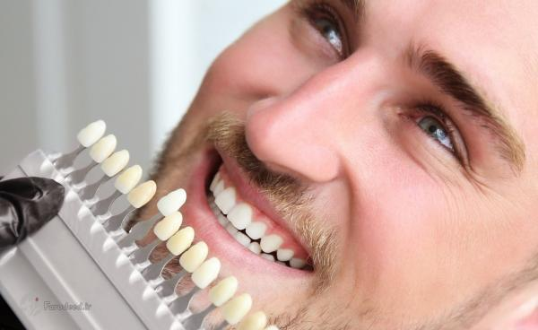 راه های سفیدی دندان؛ برای سفید شدن دندان چی خوبه؟