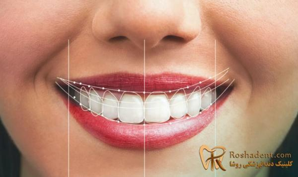 لیمنت دندان چیست ، قیمت لمینت دندان 1400 در تهران