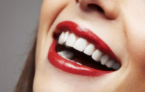 15 ترفند خانگی ساده و مقرون به صرفه برای سفید کردن دندان ها
